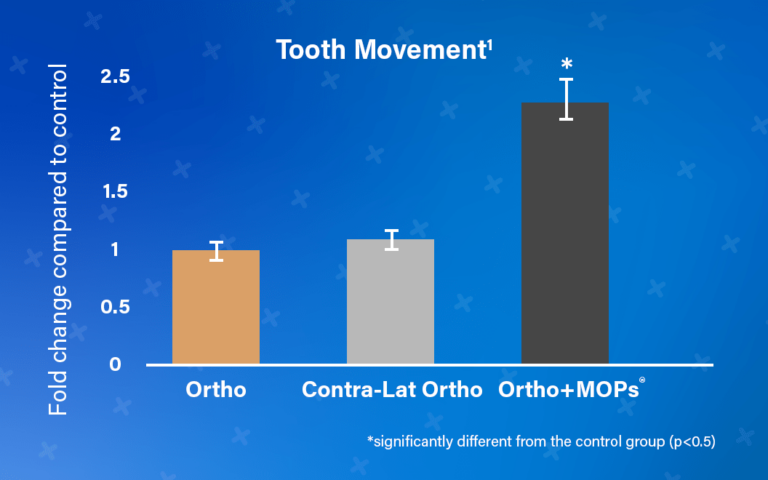 Tooth Movement Chart