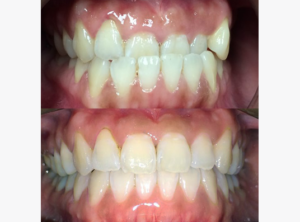 Dr. Lucy Huang Underbite MOPs Case