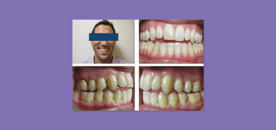 Acceleration Techniques Case Study with Clear Aligners