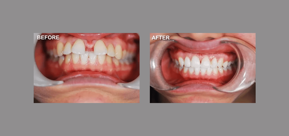 Accelerated Orthodontics Case Study
