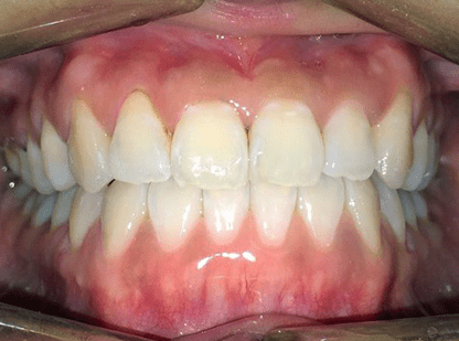MOPs Anterior Cross Bite Case Study