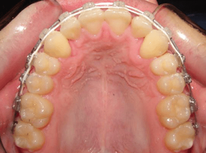 MOPs Impacted Canines Case Study