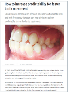 How to increase predictability for faster tooth movement 1