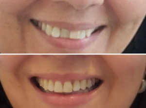Orthodontic Solutions for Patients 12