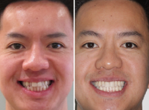 Orthodontic Solutions for Patients 6