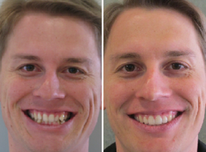 Orthodontic Solutions for Patients 4