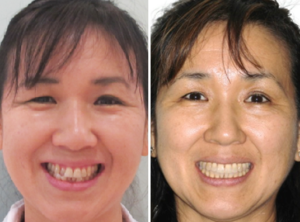 Orthodontic Solutions for Patients 5